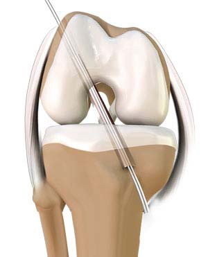 ACL Repair and Reconstruction