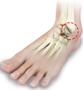 Foot & Ankle Arthritis