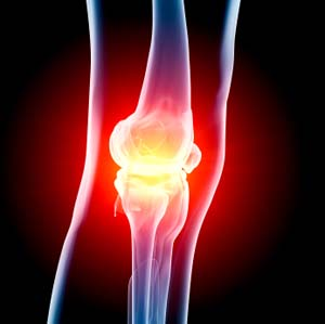 Knee Injury