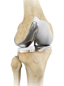 Partial Knee Replacement (Robotic Surgery)