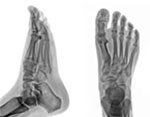 Current Solutions in Foot & Ankle Surgery